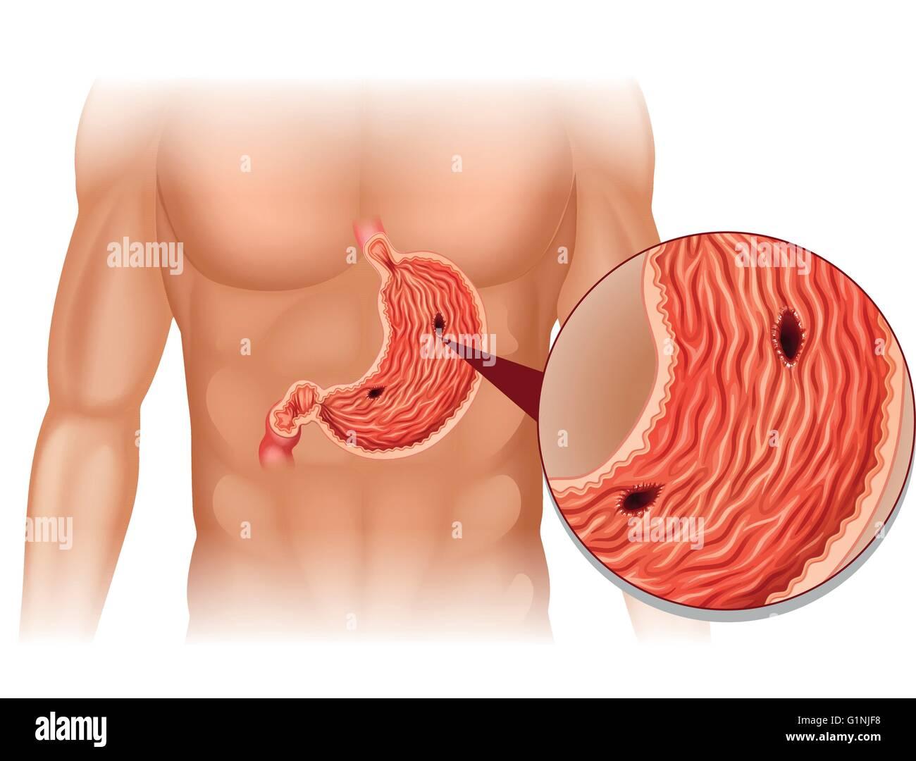stomach ulcer in human body illustration G1NJF8 stomach ulcer in human body illustration stock vector art