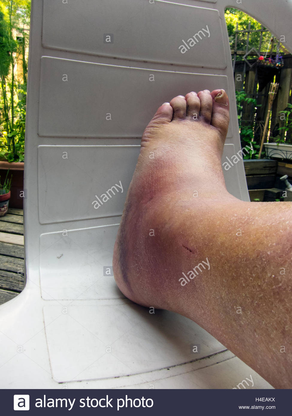 Broken Ankle  Bruises And Swelling On Leg  Foot And Toes