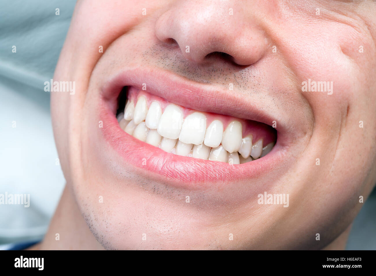 Macro close up of human male mouth showing perfect white ...