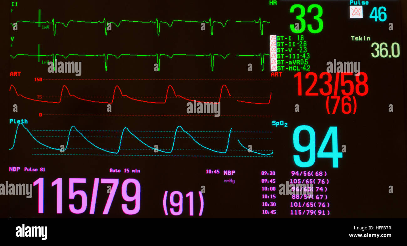 Monitor with ECG with significant sinus bradycardia..