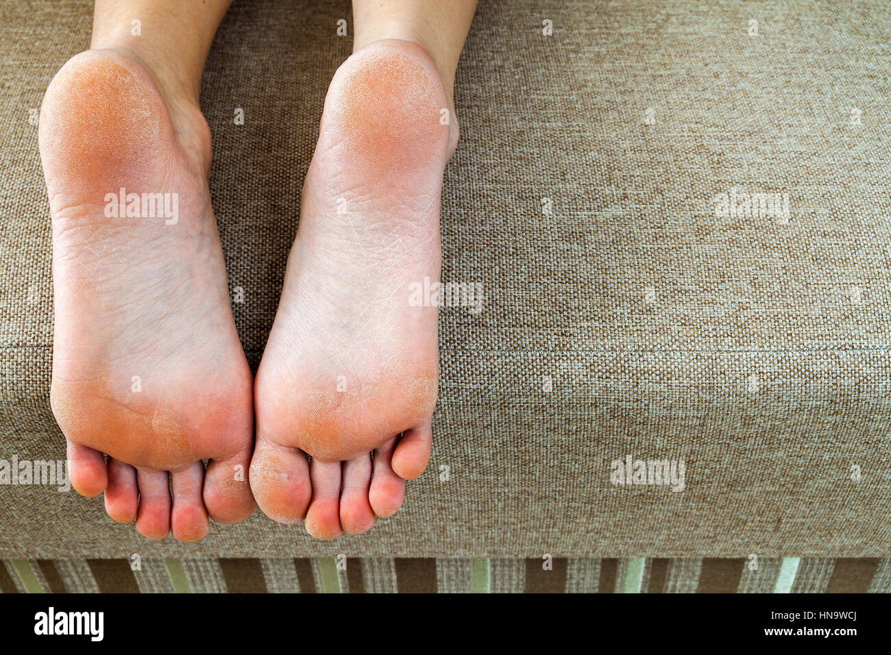 dry cracked skin of woman feet in bed foot treatment