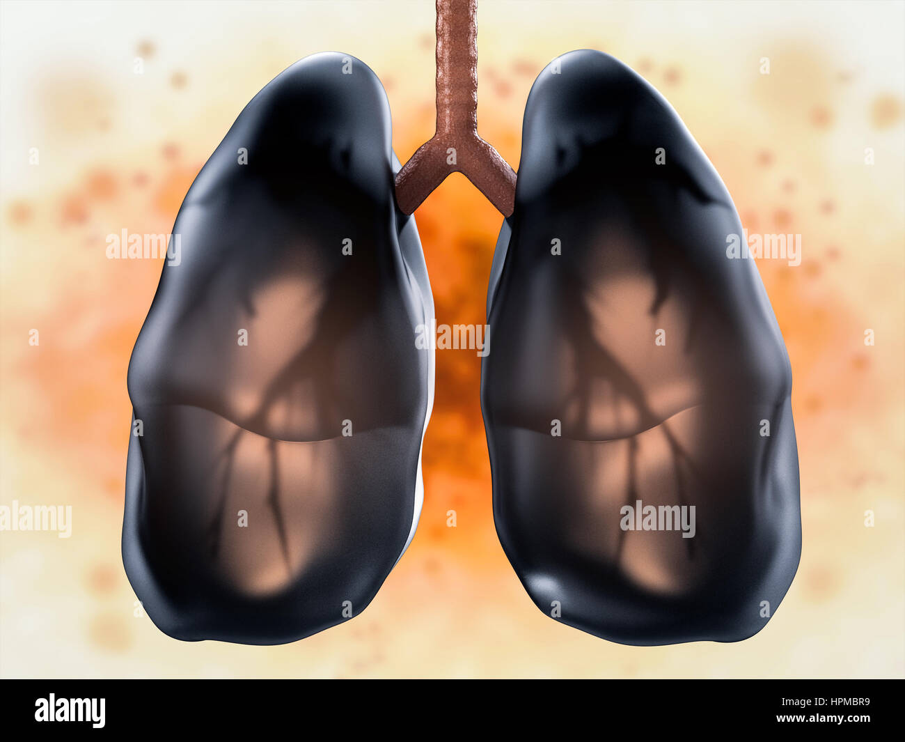 3d rendering black lungs or unhealthy lungs stock photo