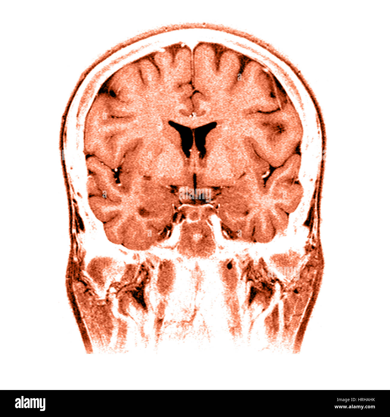 Normal brain imaging examples  Radiology Reference