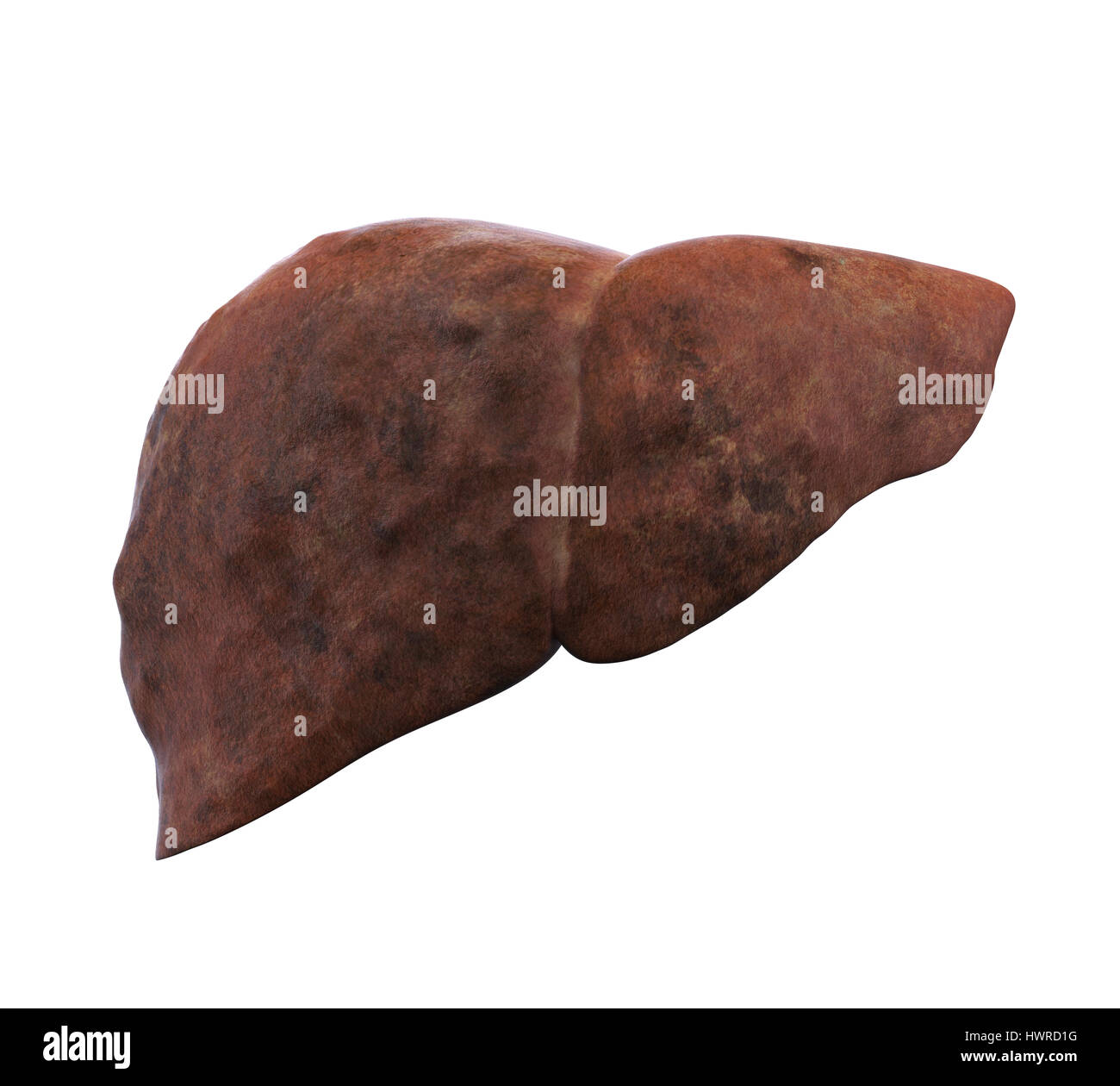 Unhealthy Liver Anatomy Stock Photo, Royalty Free Image ...