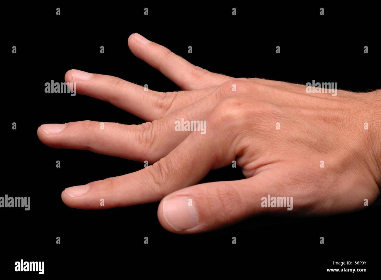 ehlers-danlos syndrome Stock Photo: 140905463 - Alamy