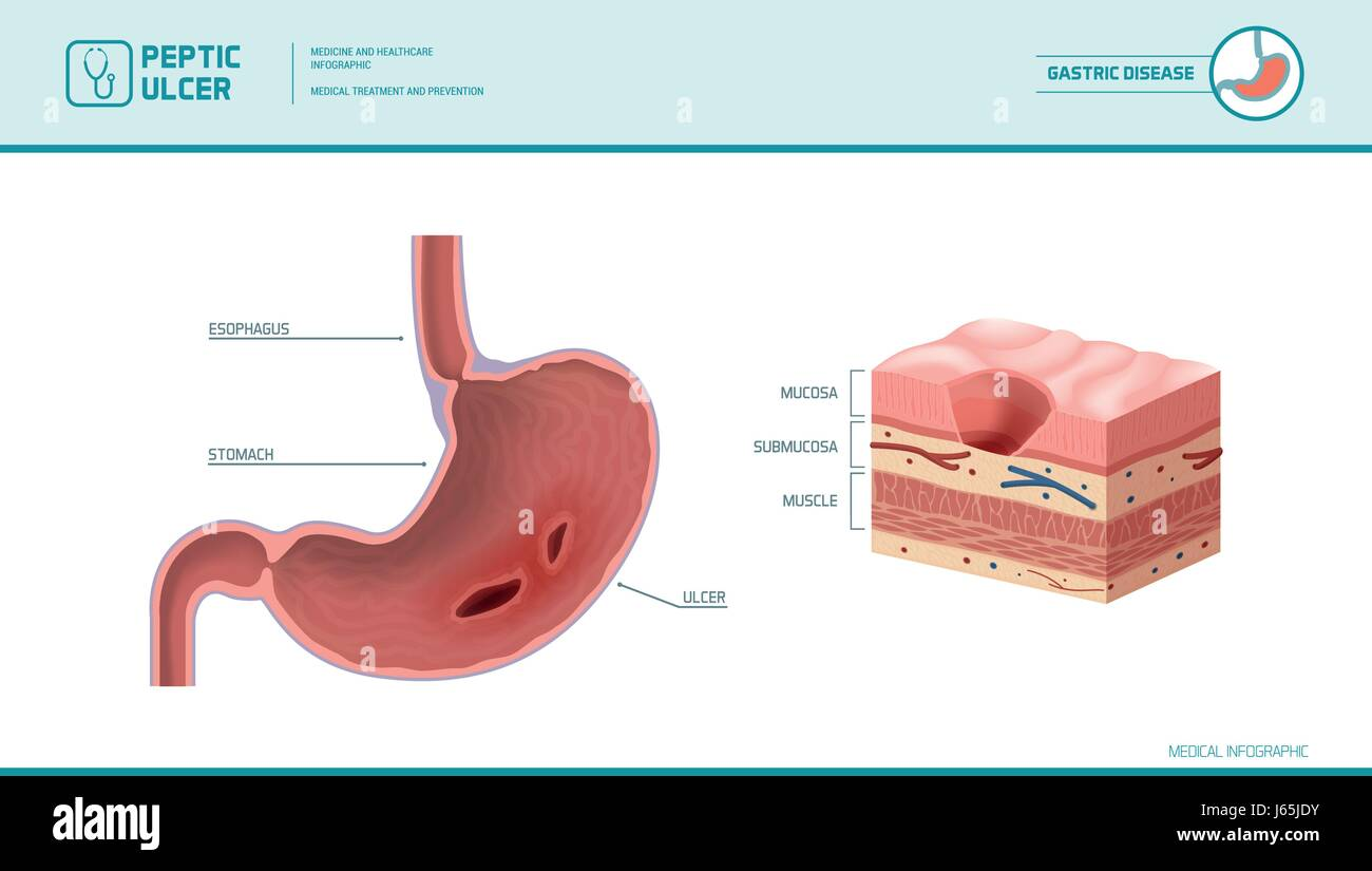 peptic ulcer stock photos & peptic ulcer stock images - alamy  mucosa diagram