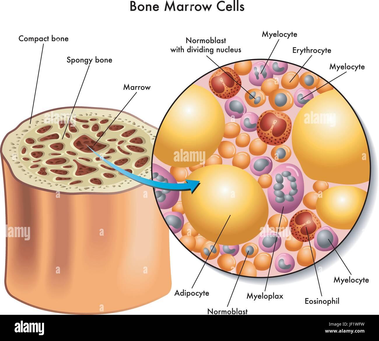 Leukemia Bone Marrow Diagram