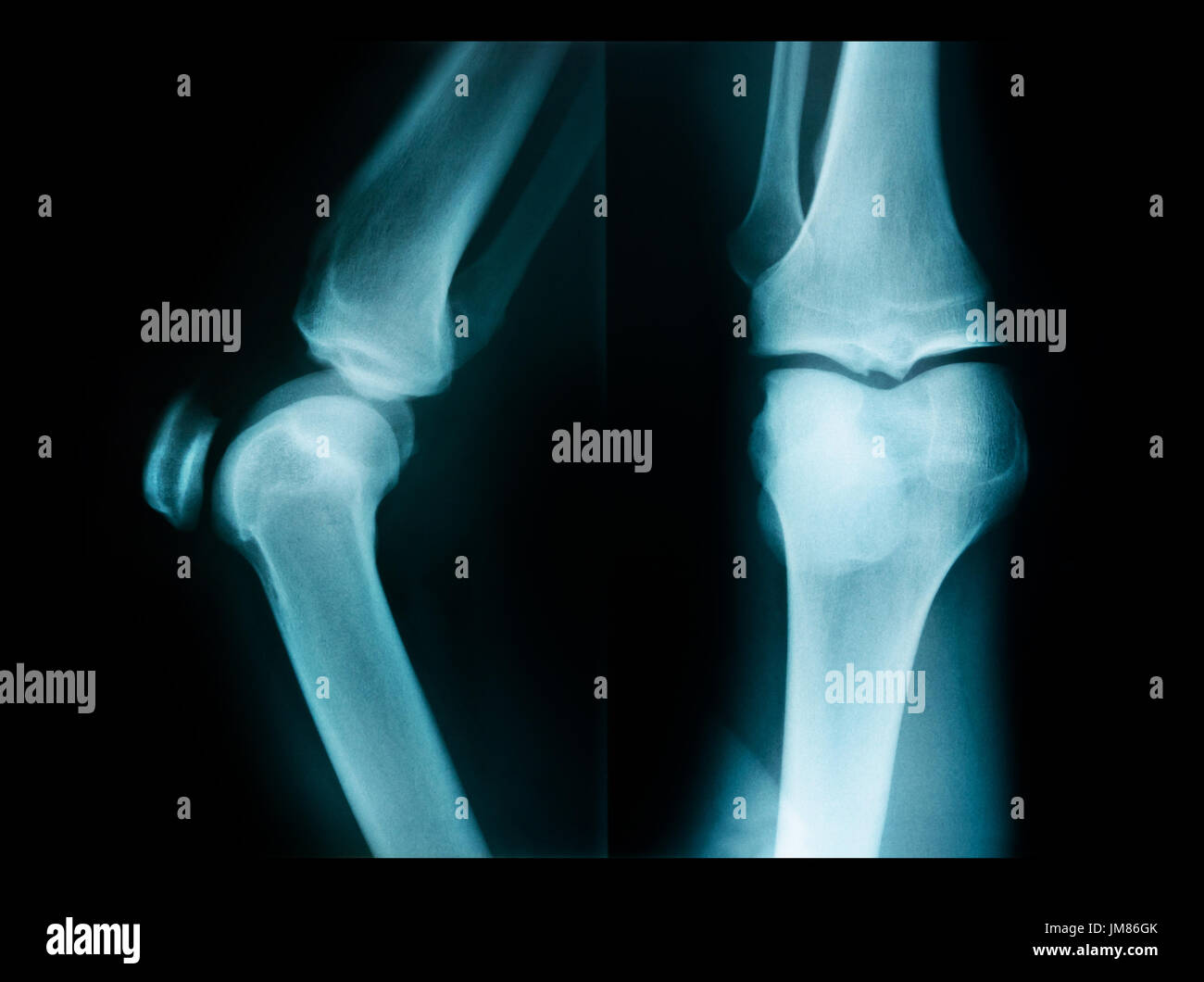 X Ray Picture Showing Knee Joints Knee Bones Joint Stock Photo