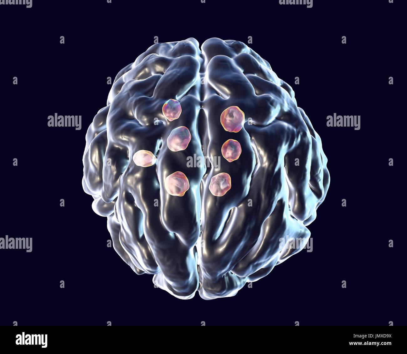 cryptococcal brain lesions illustration of multiple brain