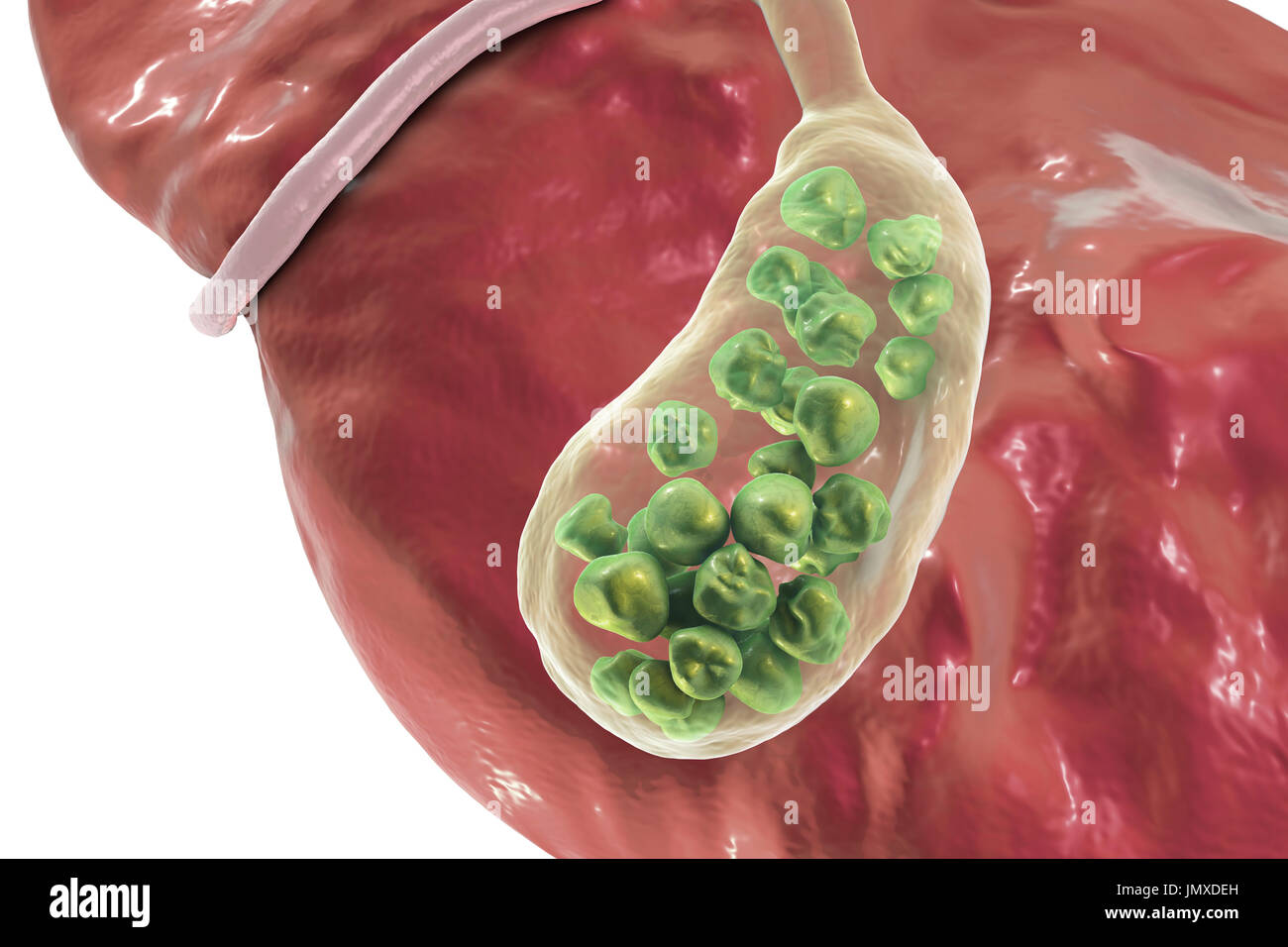 Gallstones Illustration Showing The Liver And Gallbladder With