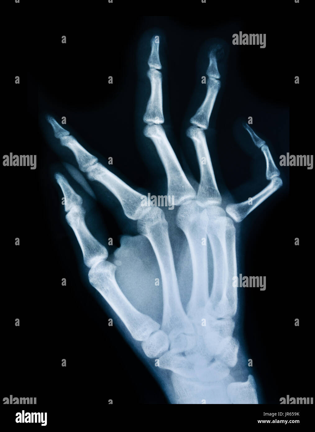 Lateral hand x ray anatomy