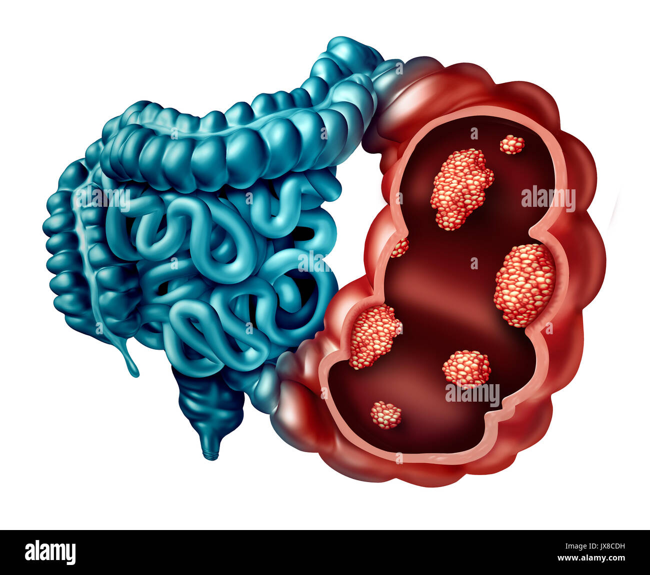 Colon cancer concept as a human intestine disease with forced Stock ...