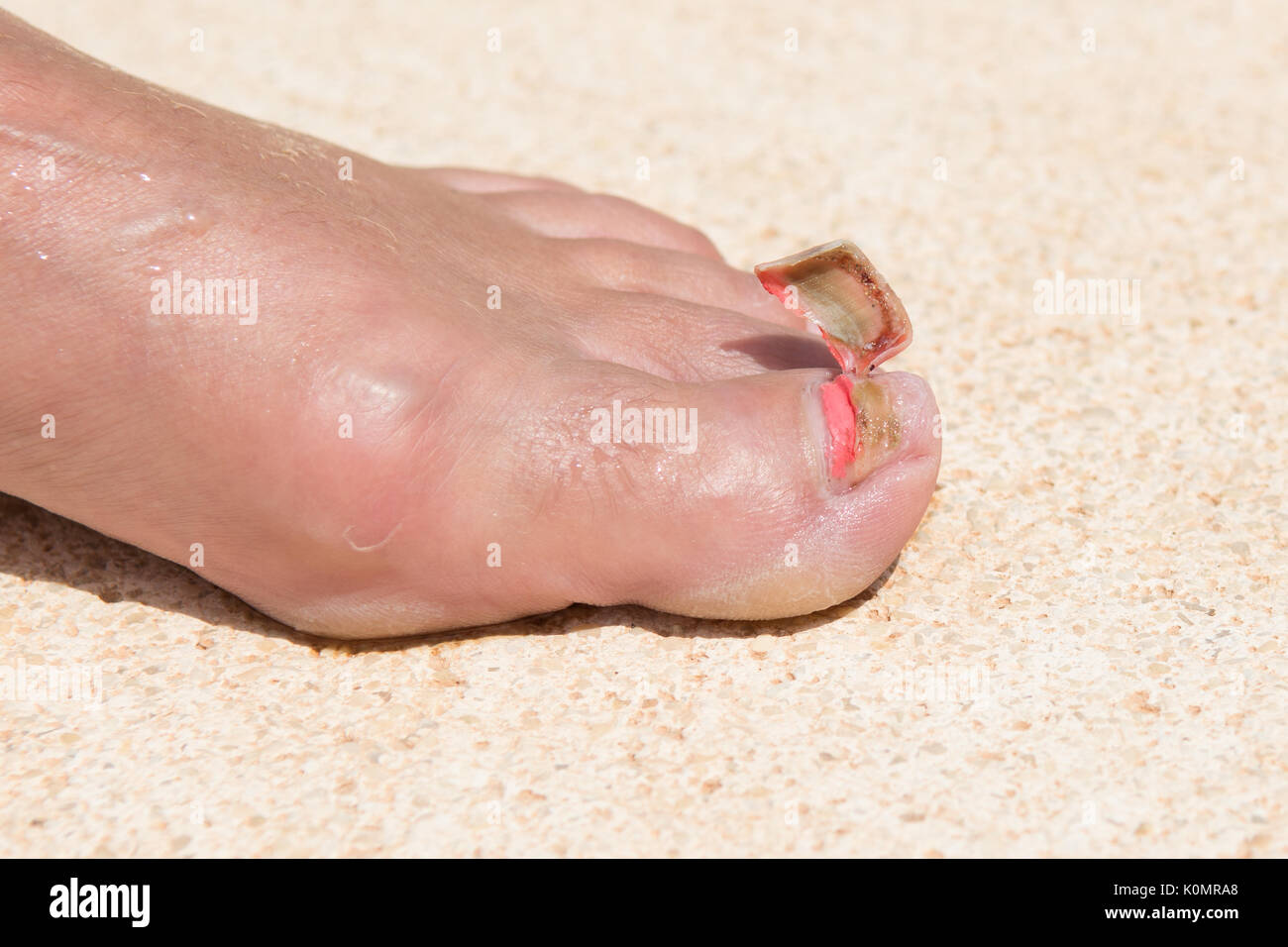 detached toenail - skiing injury 6 months previously Stock Photo ...