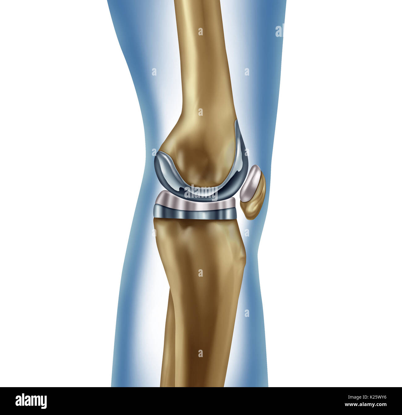 Replacement knee implant medical concept as a human leg anatomy ...