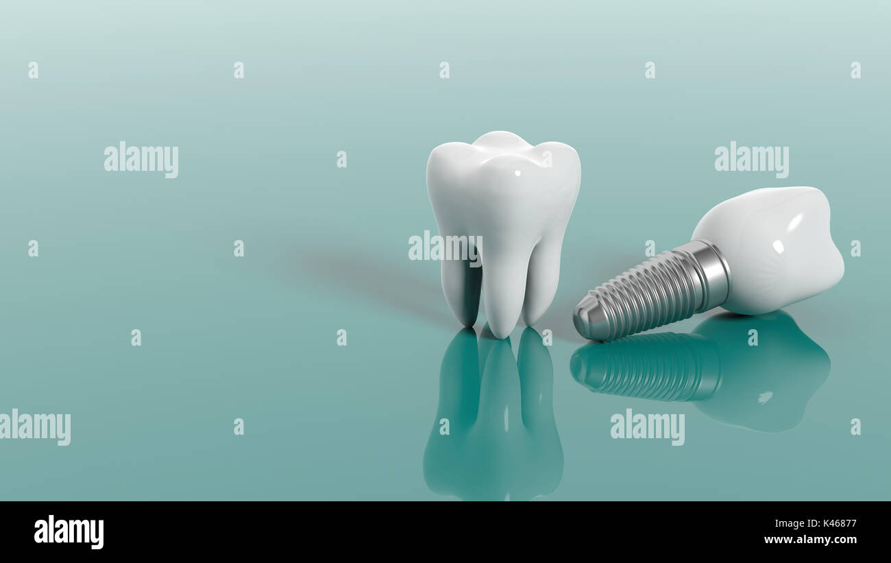 Tooth Decay Illustration Stock Photos & Tooth Decay ... Dental Implant Background