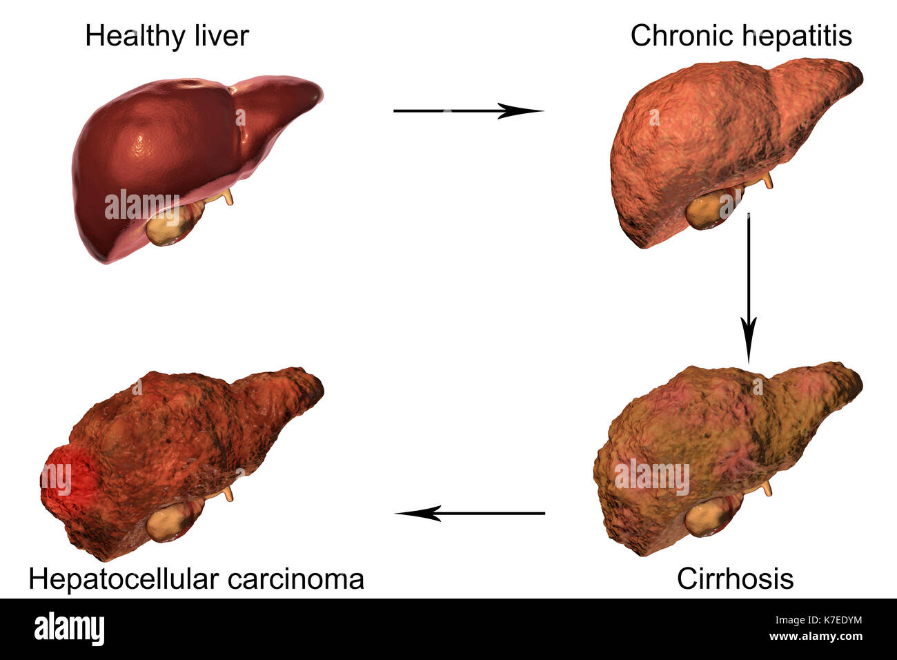 Human liver showing stages of liver disease computer illustration human liver showing stages of liver disease computer illustration ccuart Gallery