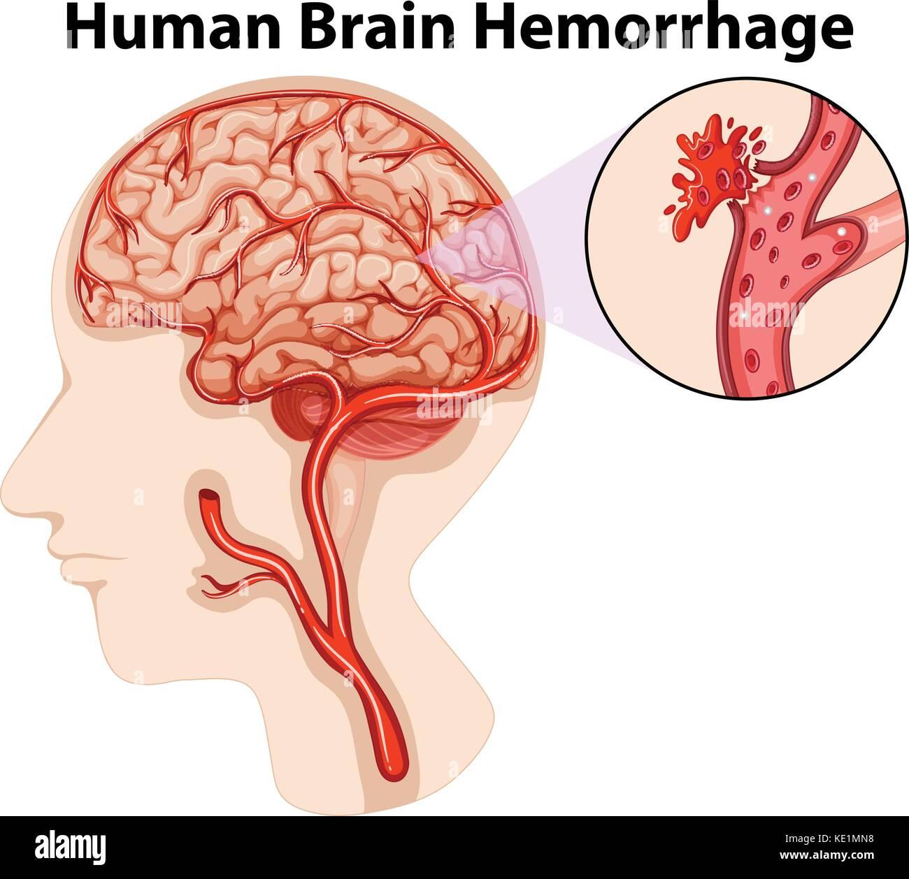 Diagram Of Human Brain Hemorrhage Illustration Stock Vector Art