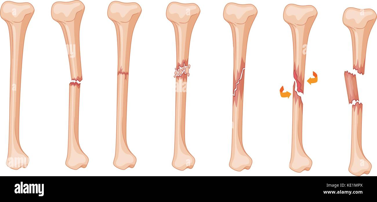 Diagram Of Leg Fracture In Different Stages Illustration Stock