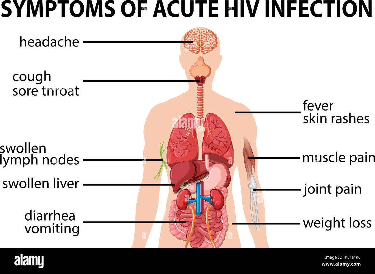 Chart of symtoms of acute HIV infection illustration Stock Vector ...