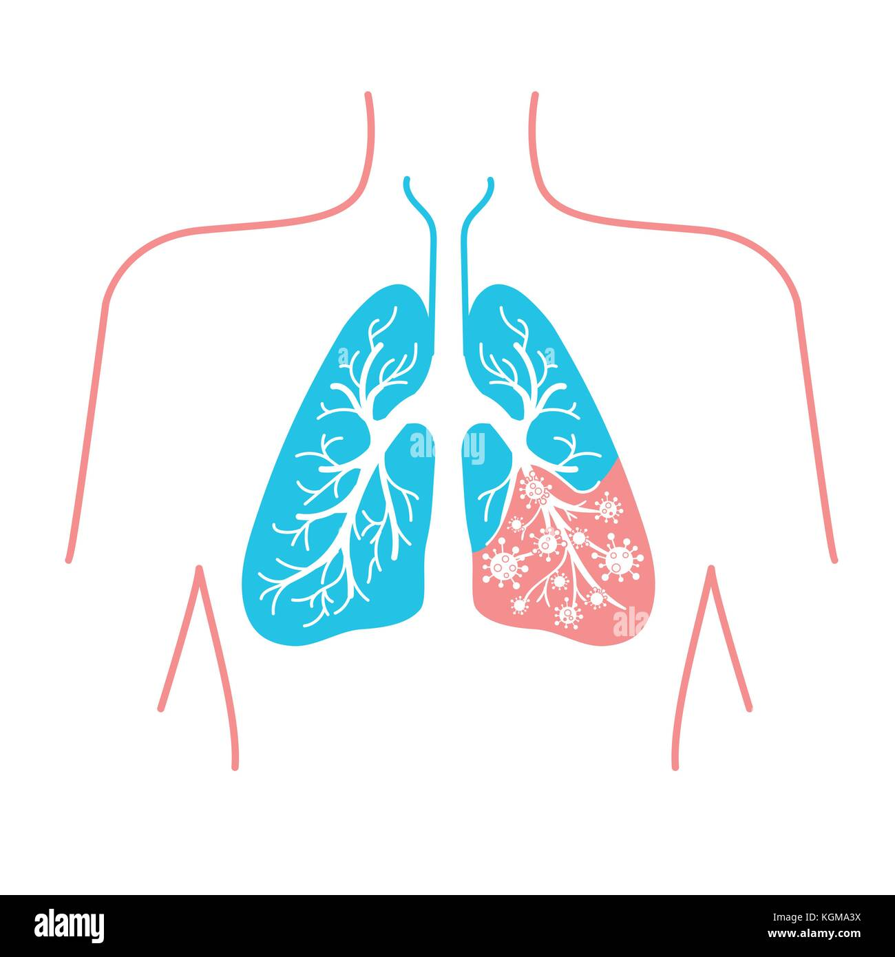icon of lung disease, pneumonia, asthma, cancer in the form of lung ...