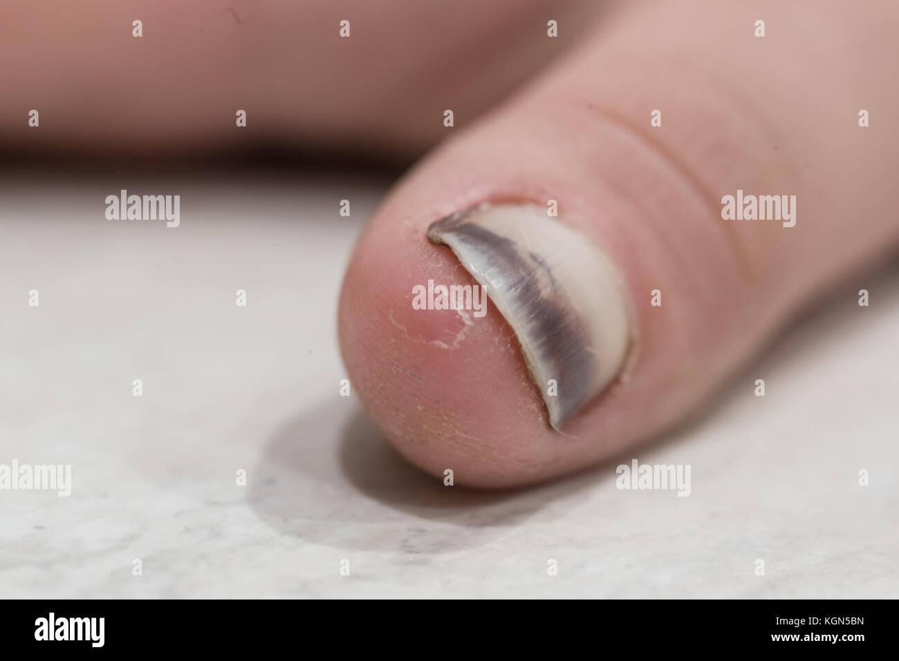 Damaged Fingernail Stock Photos & Damaged Fingernail Stock Images ...