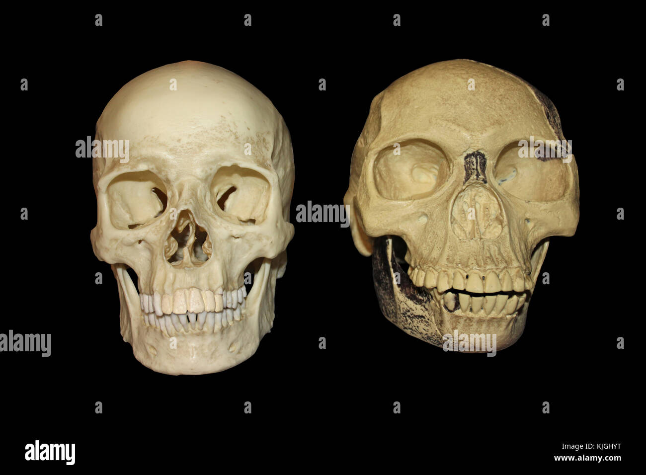 Comparison Piltdown Man Vs Modern Human Skull Front View Stock Photo