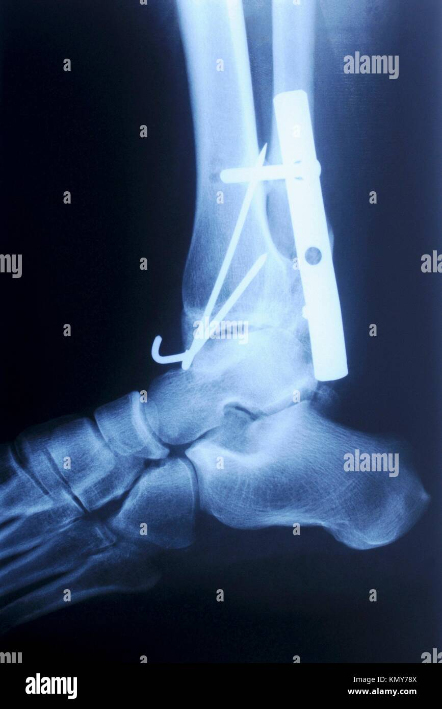 authentic x-ray picture of human fracture ankle with metal plate and ...