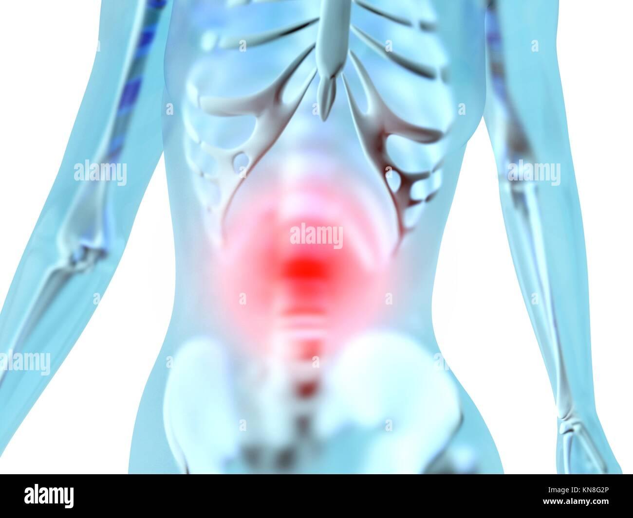 Female anatomy. Stomach ache and pain sensation. 3D illustration ...