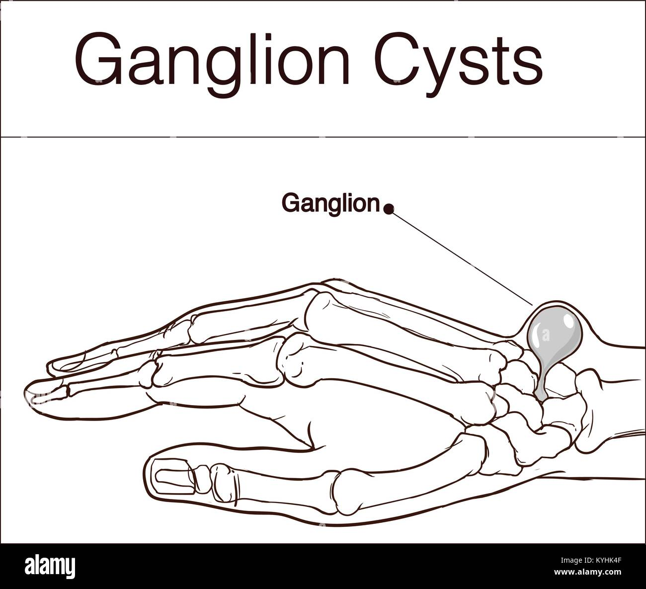 Ganglion Cyst Stock Photos & Ganglion Cyst Stock Images