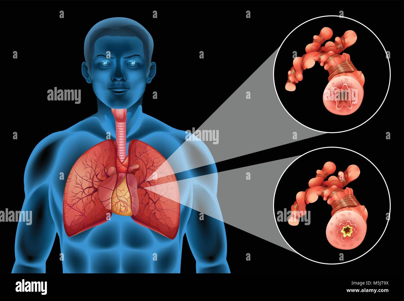 Diagram Showing Human Lungs And Disease Illustration Stock Vector
