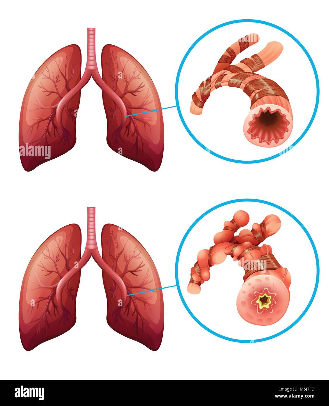Diagram showing lungs with disease illustration stock vector art diagram showing lungs with disease illustration ccuart Images