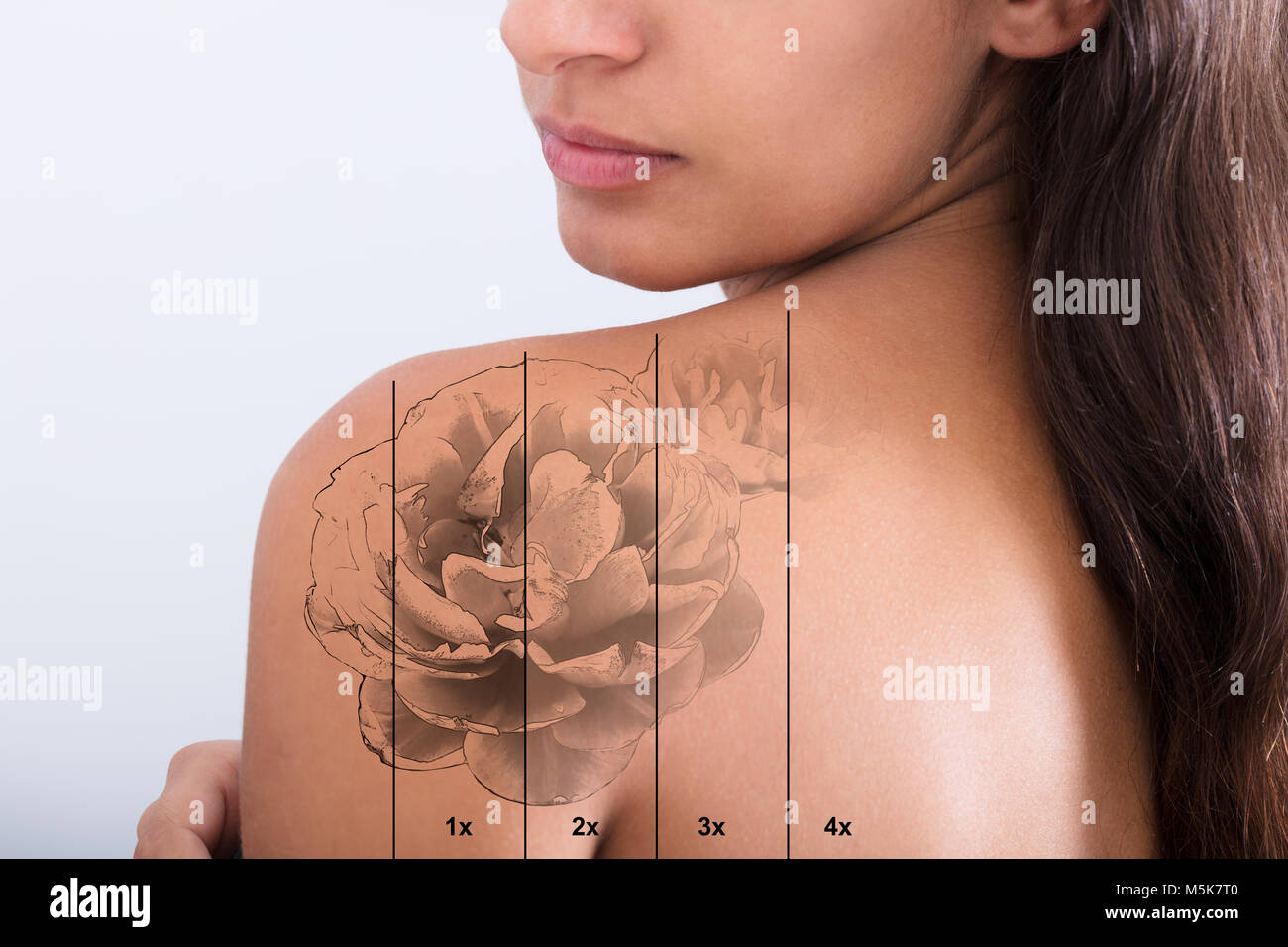 Tattoo Removal Laser Stock Photos & Tattoo Removal Laser ...