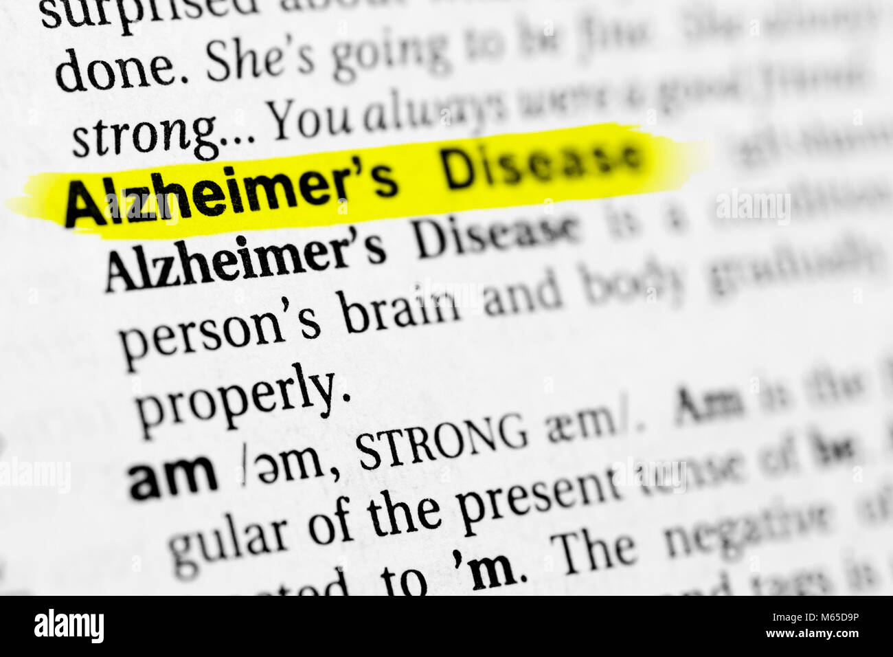 """highlighted english word """"alzheimer"""" and its definition in the stock"""