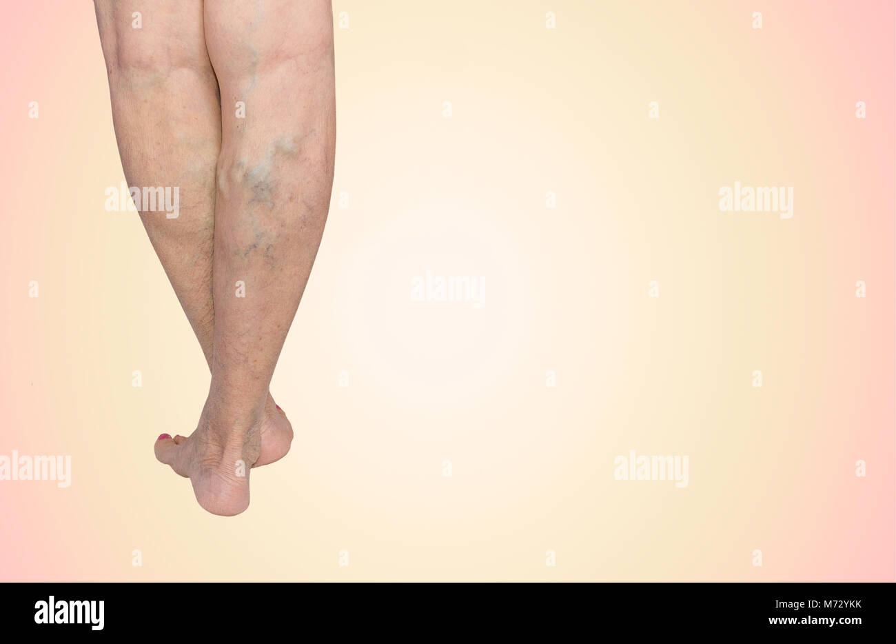 The Varicose Veins On A Legs Of Old Woman On Blue Stock Photo