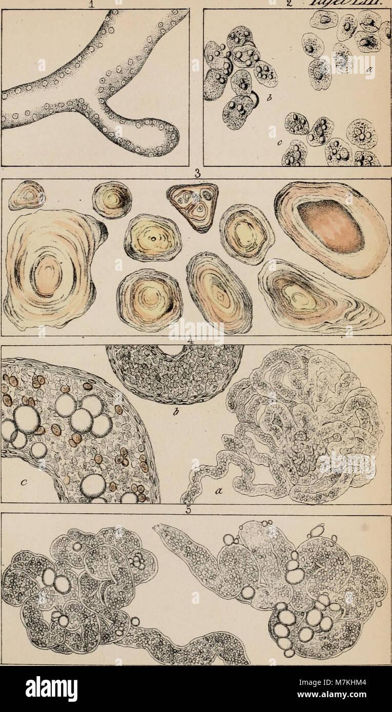 Arthur Hill Hassalls mikroskopische Anatomie des menschlichen ...