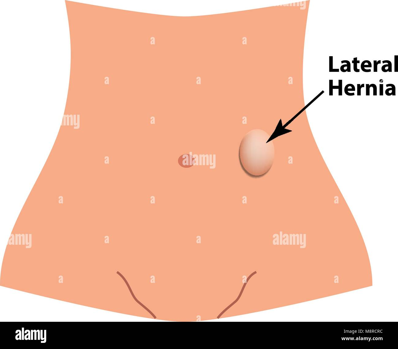 Umbilical hernia stock photos umbilical hernia stock images alamy lateral herniation intestinal hernia infographics vector illustration on isolated background stock pooptronica Image collections