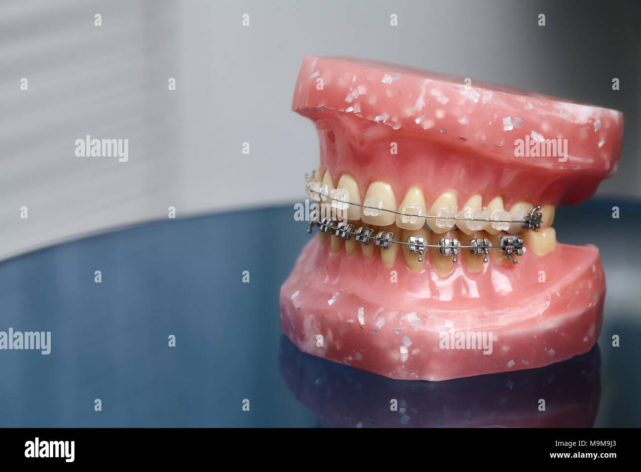 Human jaw or teeth model with metal wired dental braces, orthodontic ...