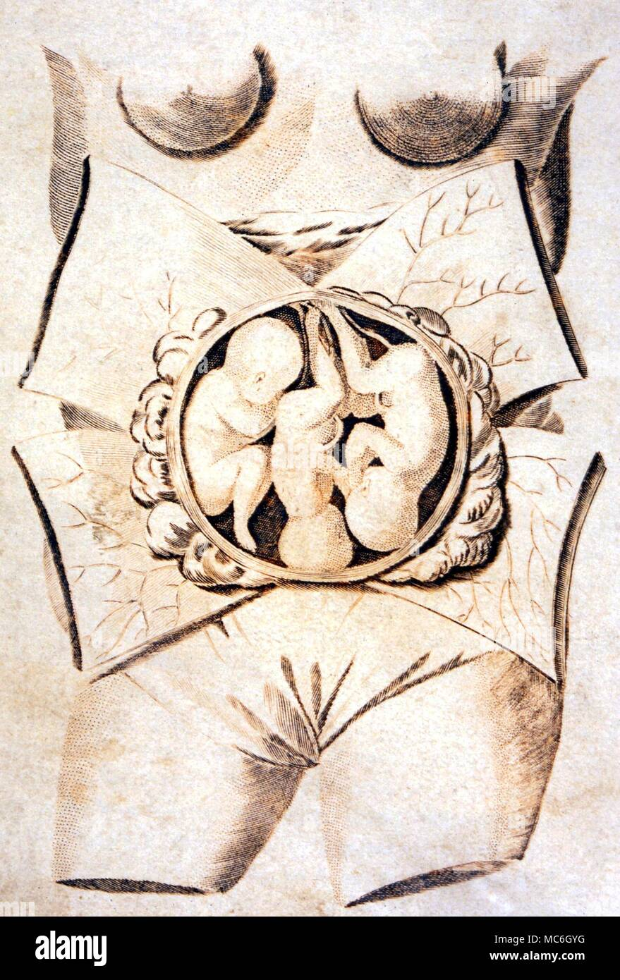 Medical Female Womb With Embryo Plate From Culpepers English