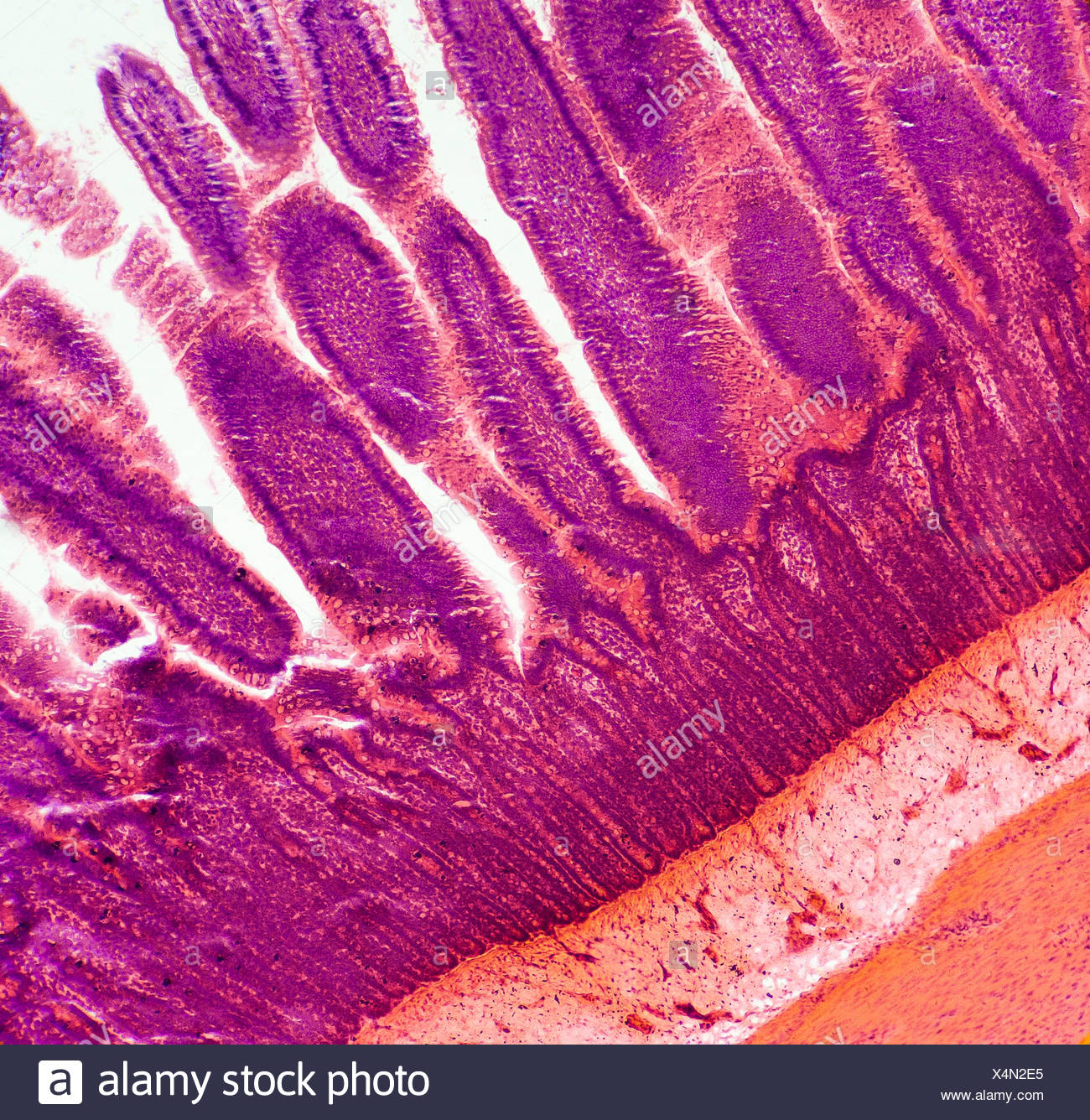 Microscopic Image At 100x Of A Small Intestine Showing The Villi