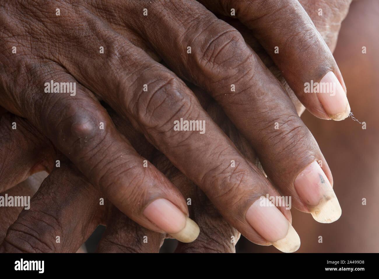 Fingernagel mann lange Männer lackieren