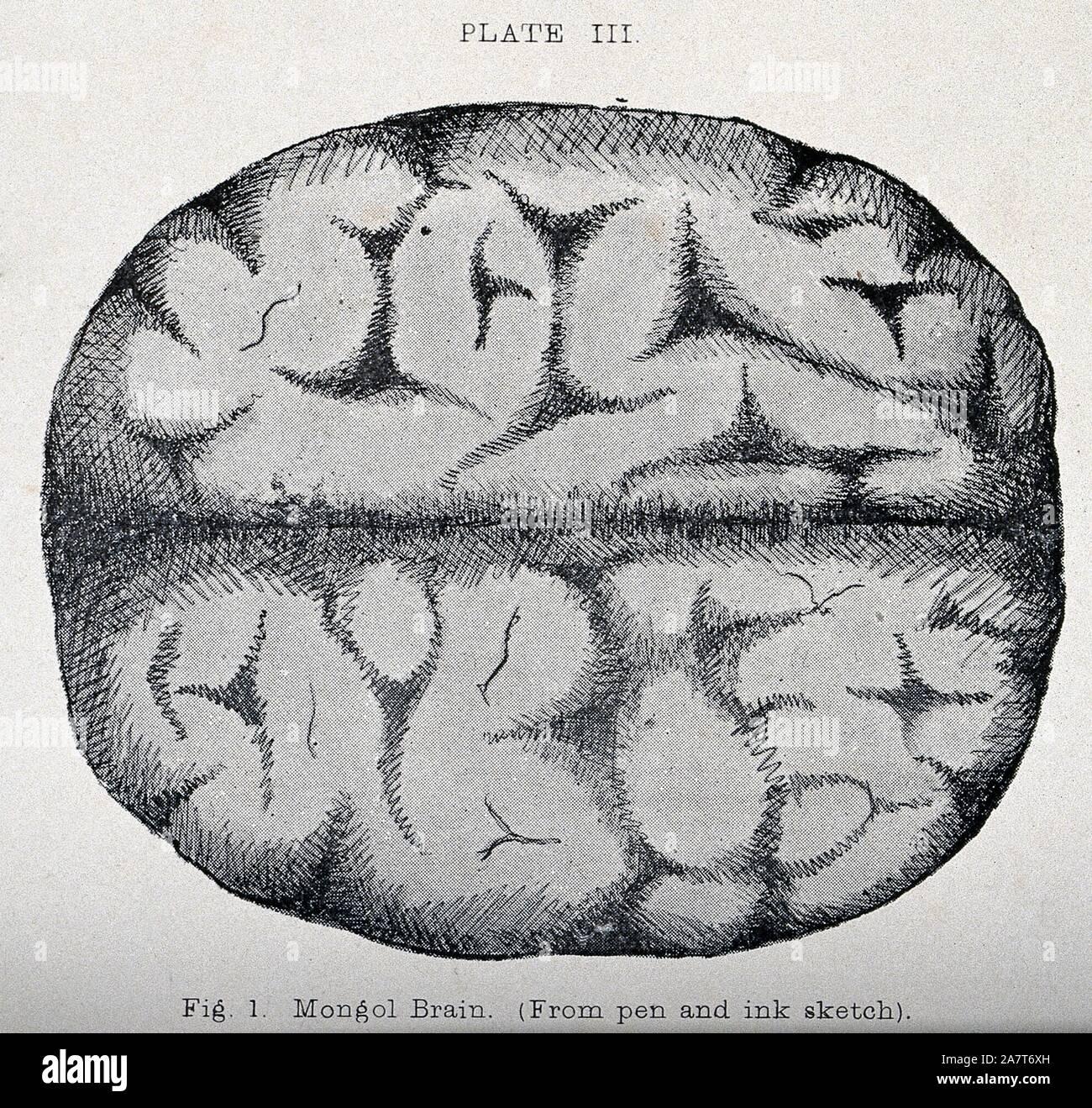Alter historischer Druck Gehirn des Menschen Holzstich 1904