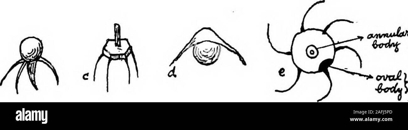 Dicker, schlanke frau, figur, gewichtsabnahme, vorher, nach, satz Zeichnung  | k69574743 | Fotosearch