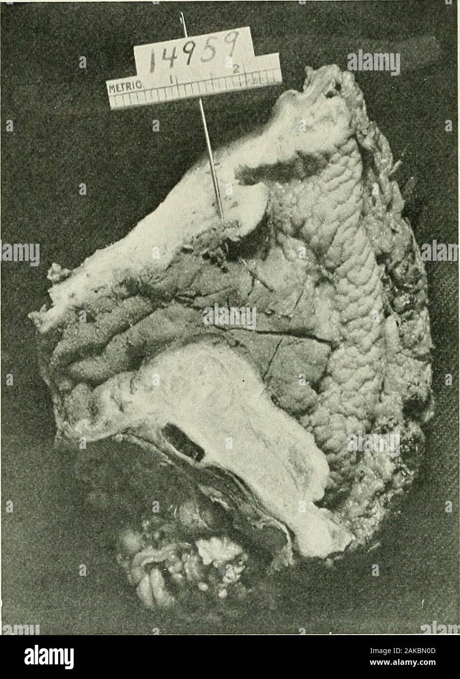 erwachsener in der pylorus stenose