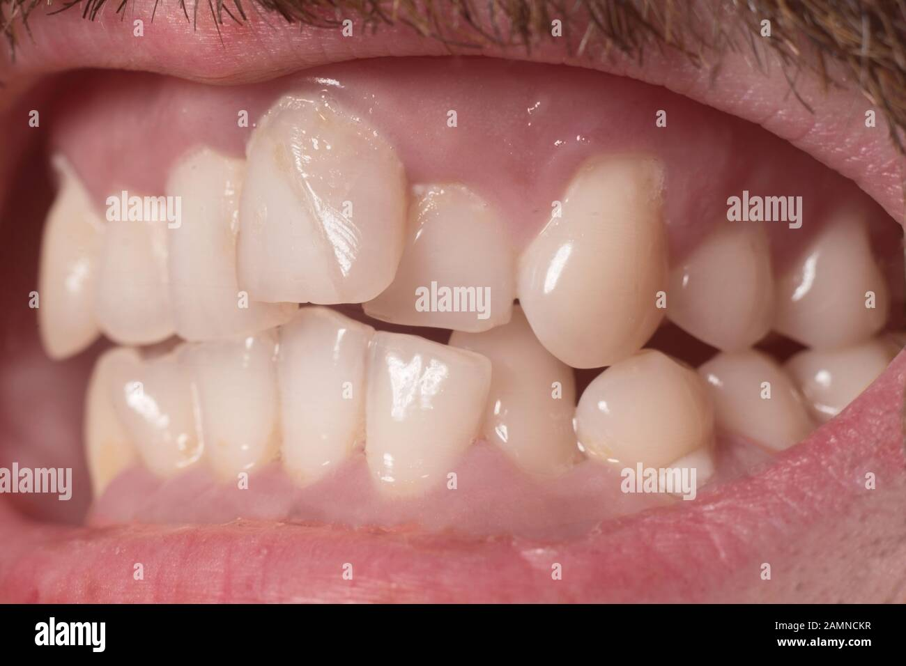 Zähne krumme saubradreti: Krumme