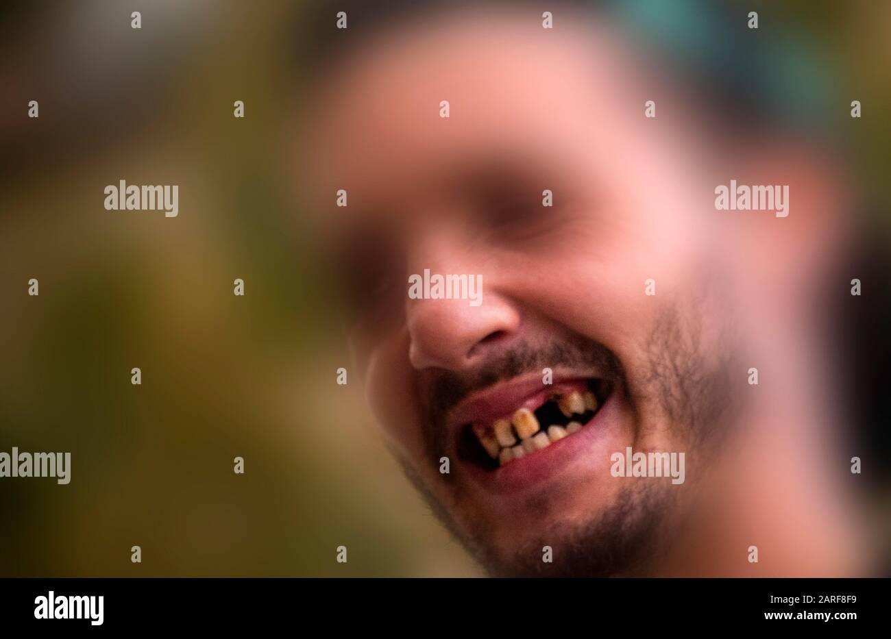 Extrem schlechte zähne was tun