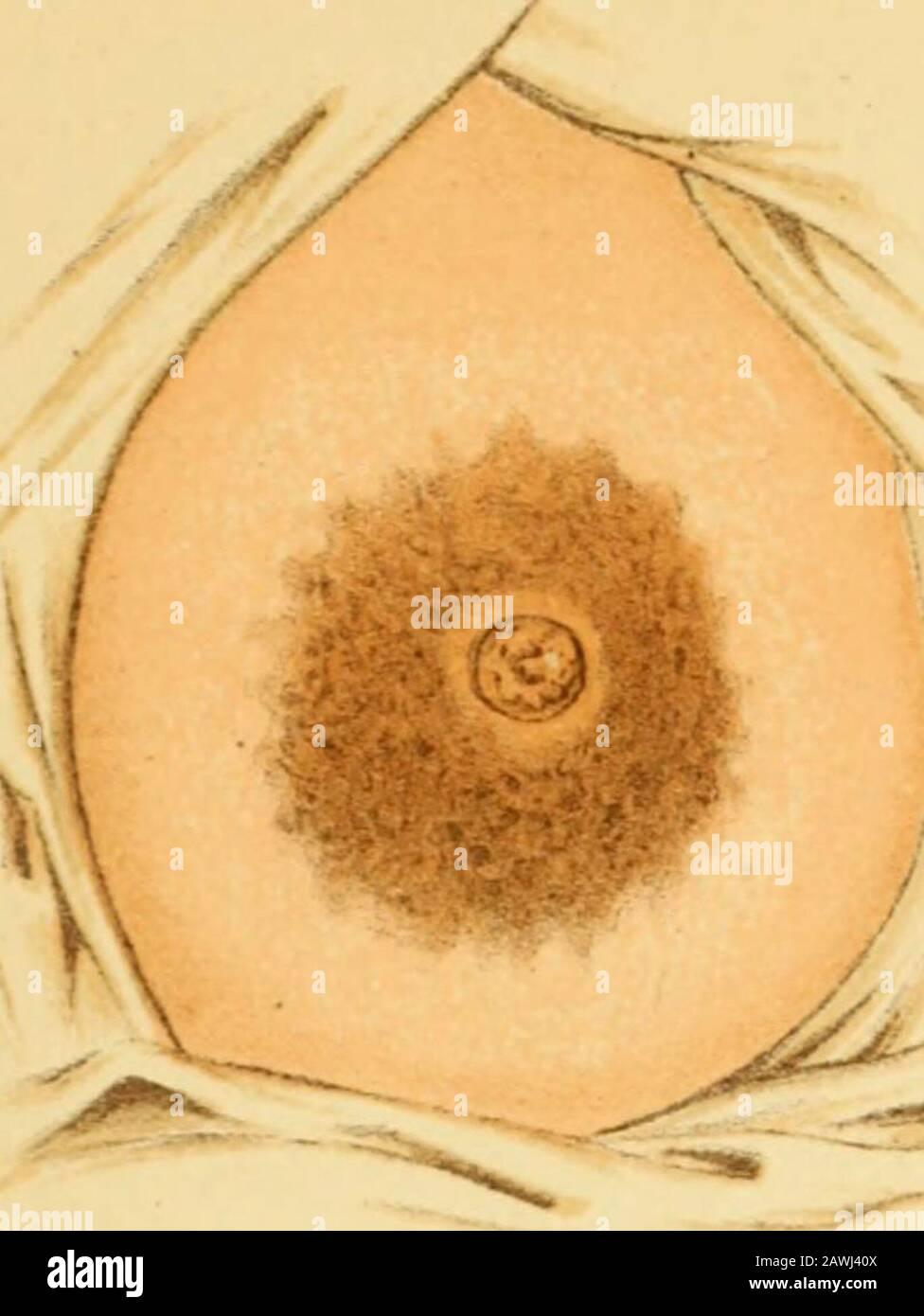 Entzündung montgomery drüsen