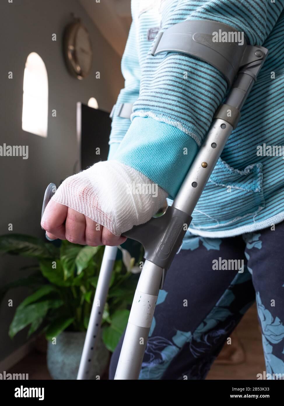 Gips krücken gebrochen bein Wie lange