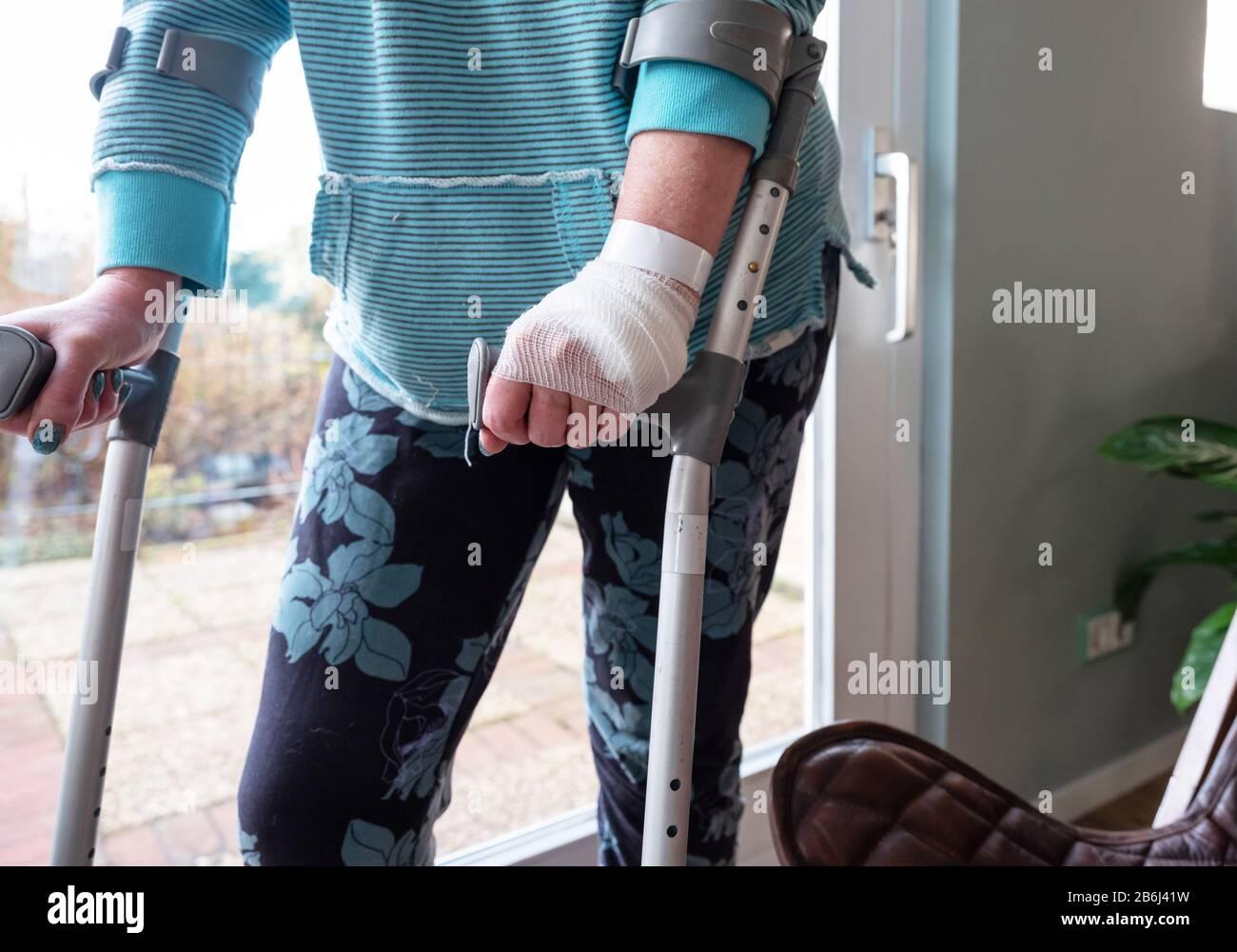Gips krücken gebrochen bein Bein gebrochen?