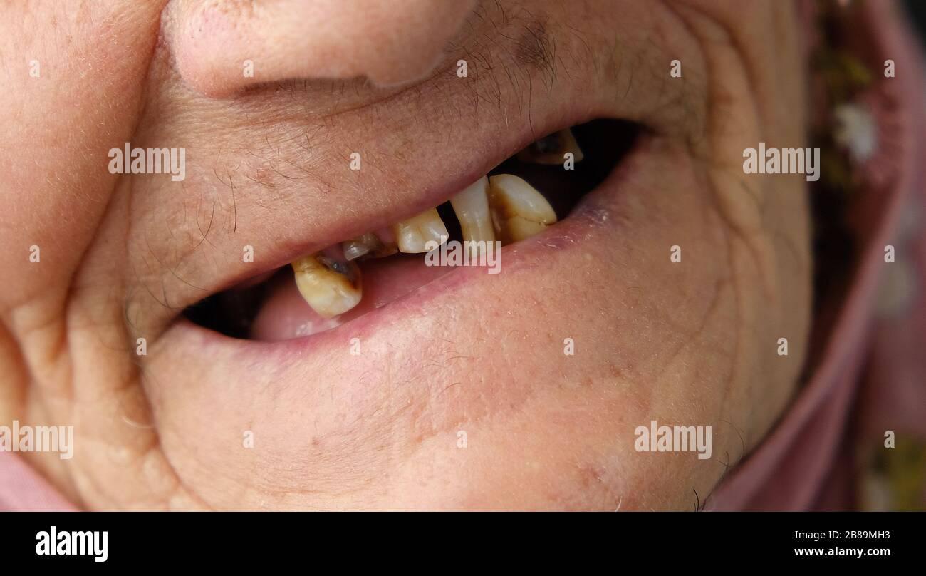 Zähne ohne alter mann Alter Mann