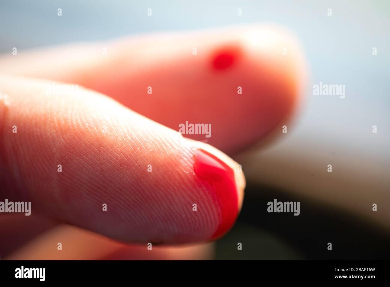 Nach fingerkuppe abgeschnitten wächst Monstera: nach